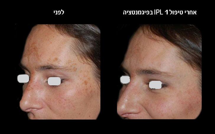 אחרי-טיפול-1-IPLלפיגמנטציה