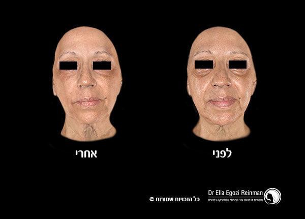 מילוי-קמטים-תמונות-לפני-אחרי