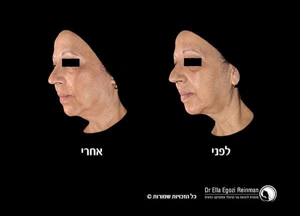 מילוי-קמטים-תמונות-לפני-ואחרי